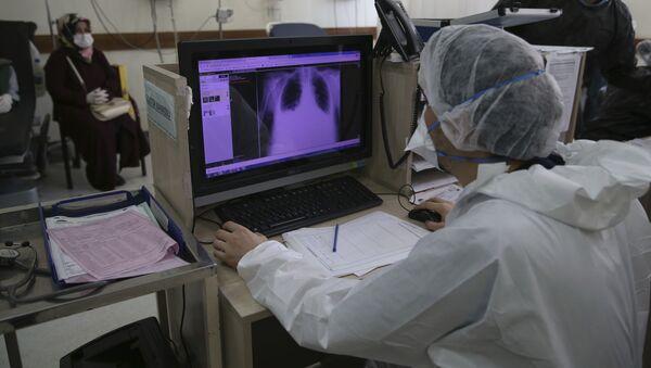 Пандемия коронавируса COVID 19 - врачи в клинике изучают снимок легких - Sputnik Грузия
