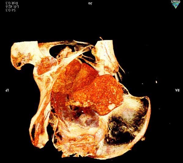 Радиологическая экспертиза древней мумии, которая была обнаружена в королевских гробницах в Верхнем Египте - Sputnik Грузия