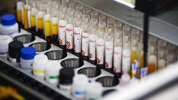 Лаборатория иммуноферментных исследований, где проходит исследование крови на инфекции - Sputnik Грузия